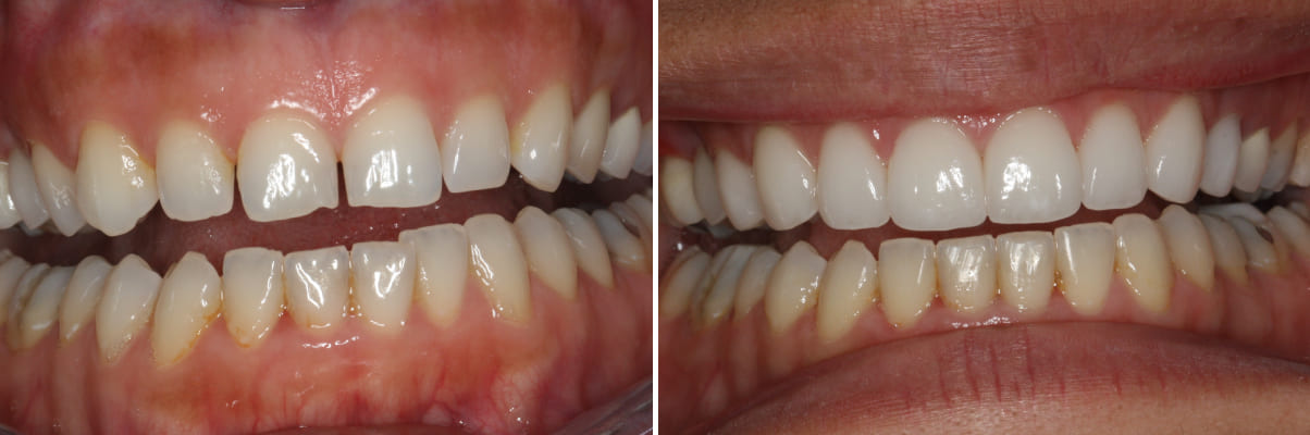 Dr. Bob Perkins DDS, Before and After Photo Gallery